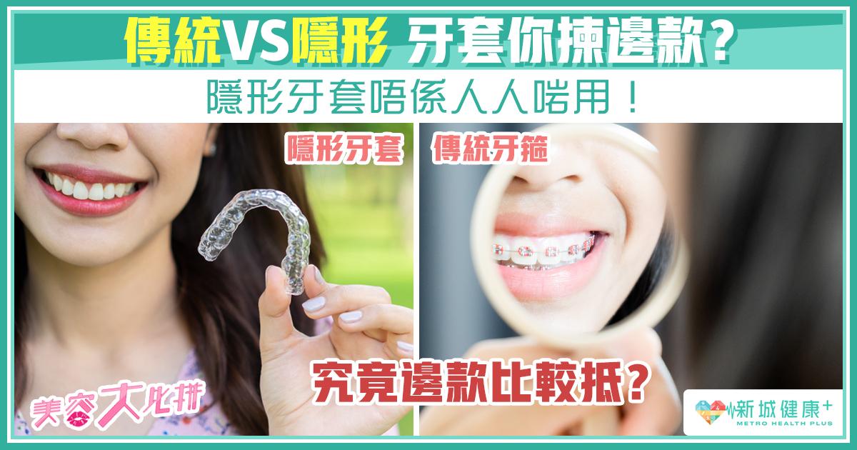 新城健康+ 隱形牙套 箍牙