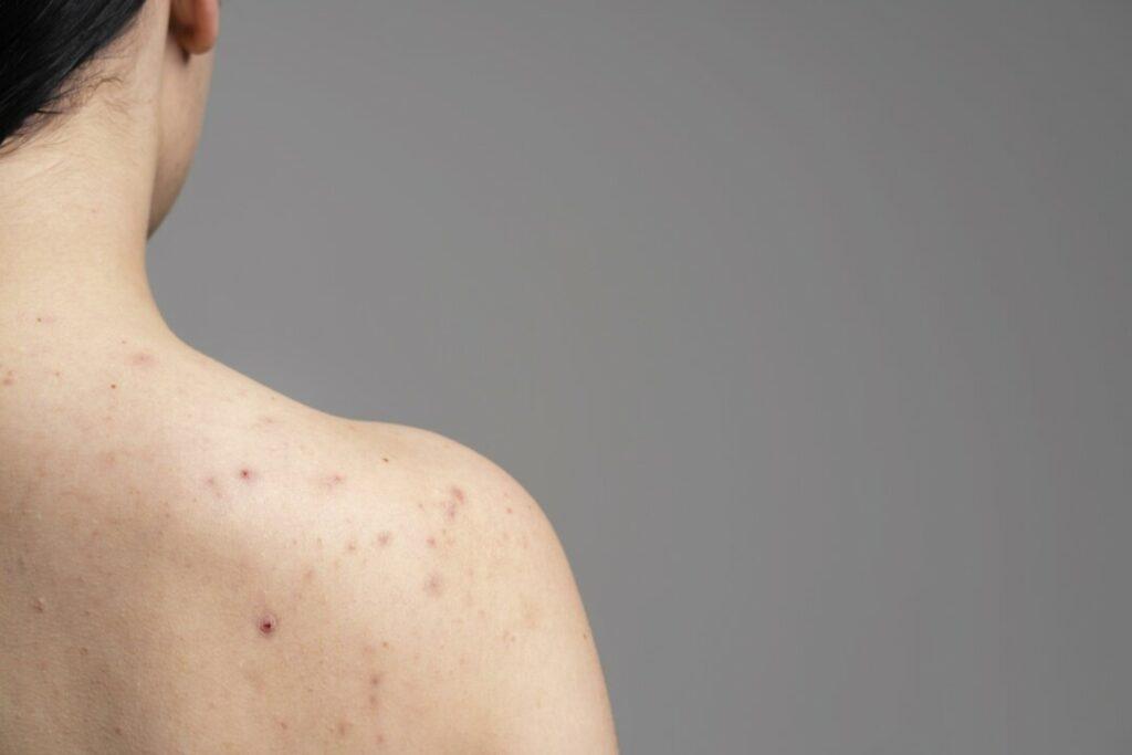 皮膚痕癢| 夏天濕疹 生粒粒 6步保濕皮膚防發作|新城健康